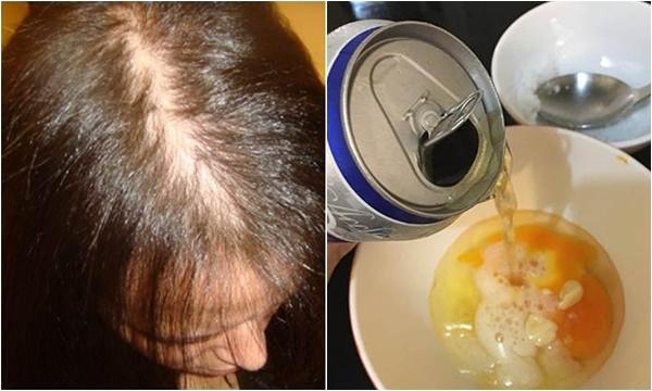 cách làm mượt tóc với trứng gà