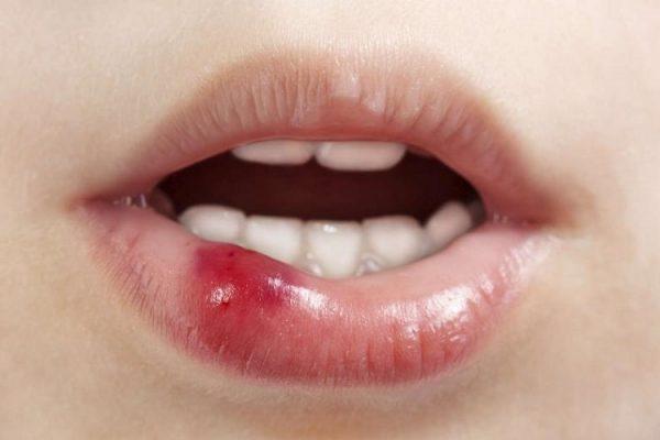 Mụn nước sau khi phun môi: Nguyên nhân và cách điều trị hiệu quả